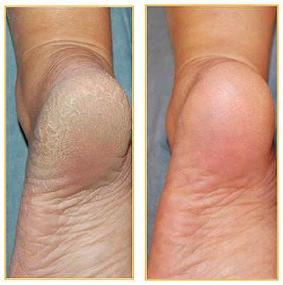 peeling för fötter